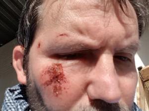 Rolstoeler Jos van Bragt maakte een selfie na zijn ongeval in Esch © Jos van Bragt